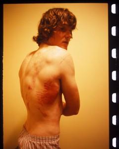 Van Homan bruised ribs